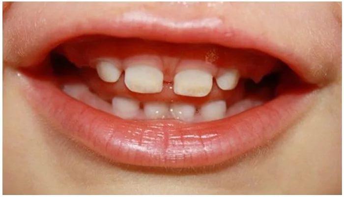 Крошатся молочные зубы у ребенка. Причины